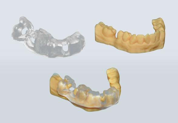 Narrow diameter implant in posterior Mandible